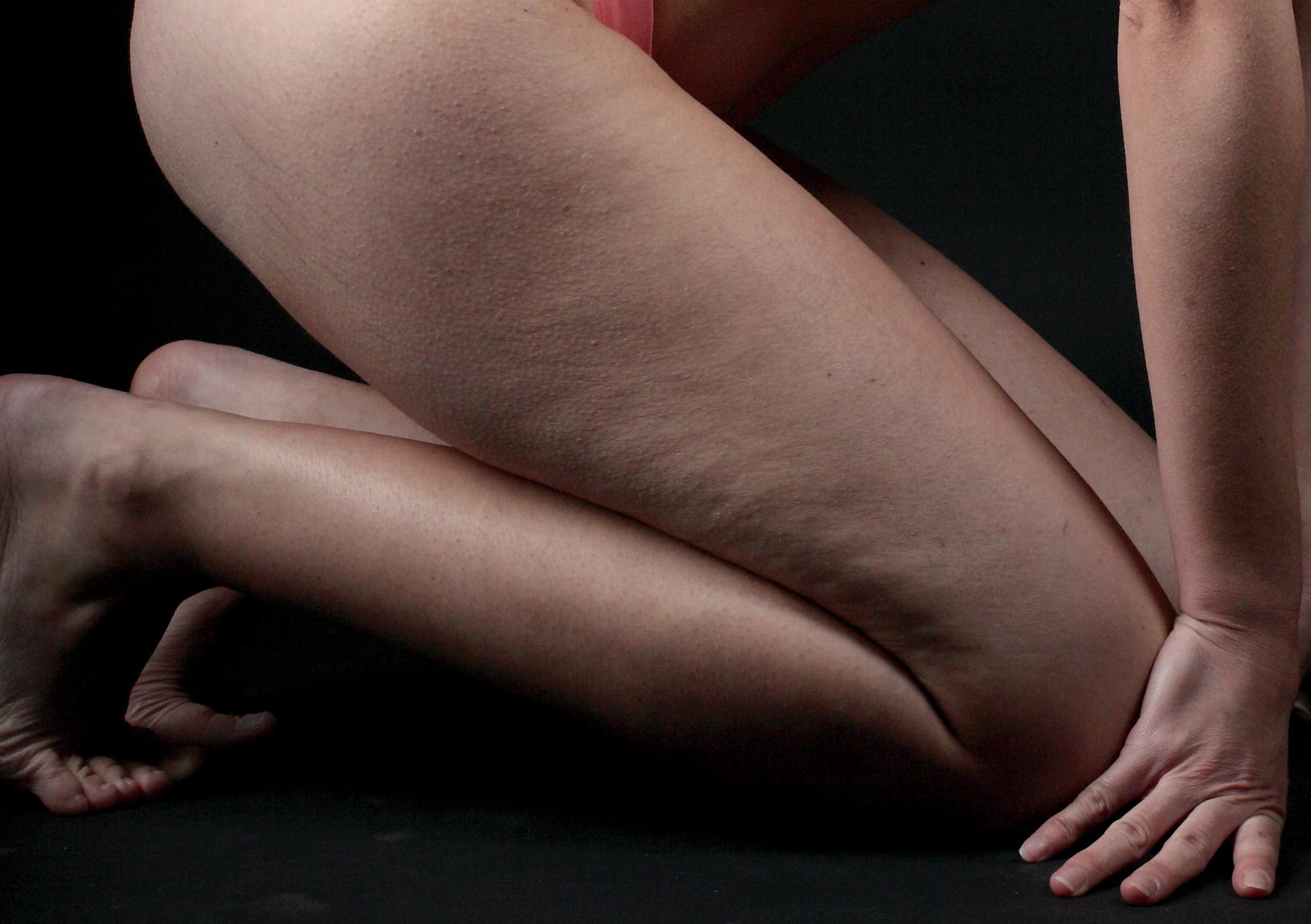cellulite donna